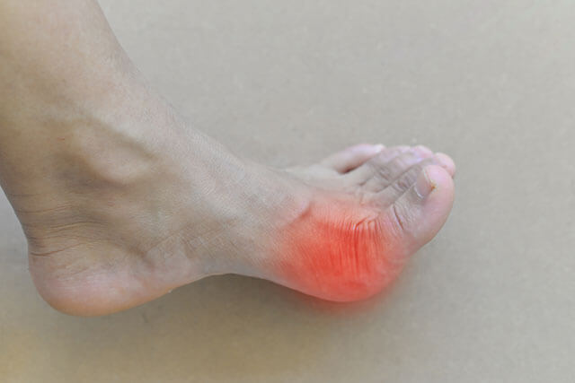 gout2